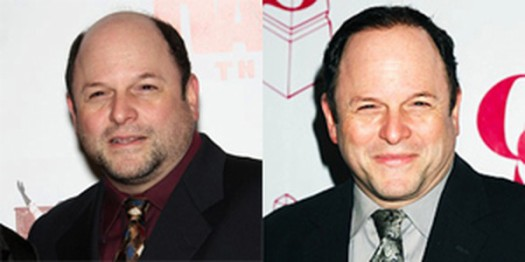 jasonalexanderwig 525 x 262 Bald Celebrities that May Surprise You