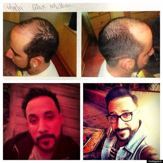 AJ McLean Hair Plugs Before and After