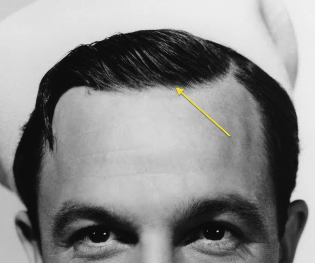 Gene Kelly wearing a hairpiece