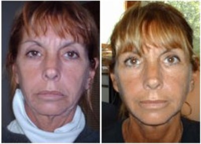 Facial Magic Before and After shots