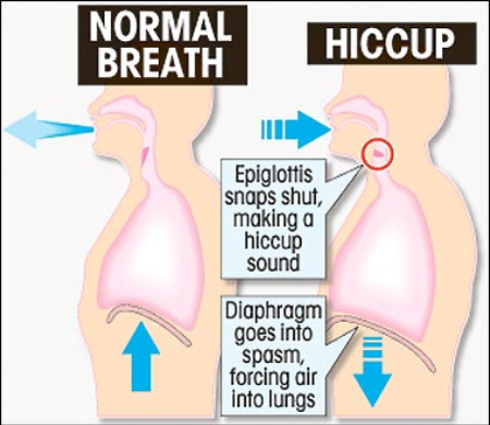 hiccups diagram How To Get Rid of Hiccups  #nablopomo
